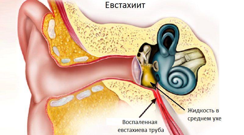 Евстахиит