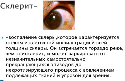 Склерит