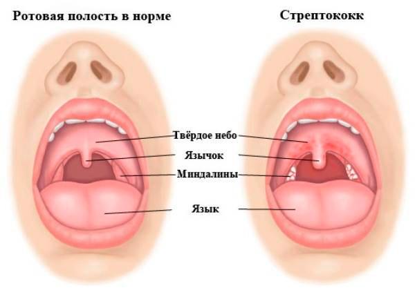 Стрептококк