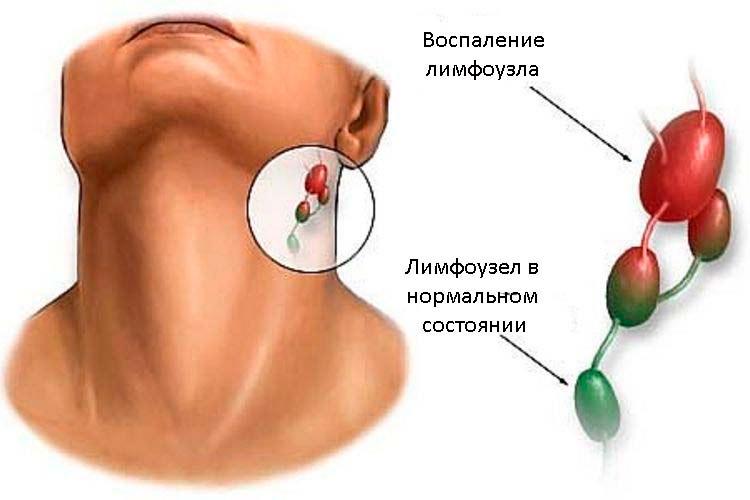 Воспаление лимфоузла